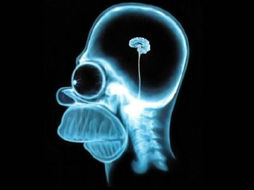 http://static.neatorama.com/images/2008-01/homer-simpson-brain-mri.jpg