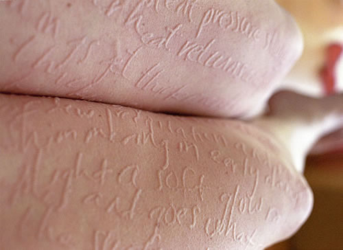 how to make self harm scars go away