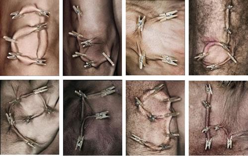 huid lagen