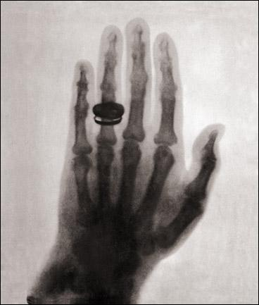 first-human-x-ray-1896.jpg